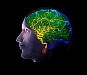 Human brain's blood supply,angiogram
