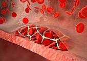 Thrombosed blood vessel,artwork
