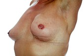 Breast cancer,surgical treatment