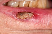 Squamous cell skin cancer on the lip