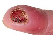 Burn to the fingertip in a diabetic