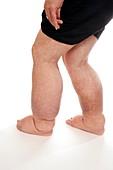 Lymphoedema in the legs