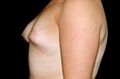 Abnormal breast development