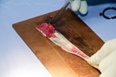 Knee ligament reconstruction surgery