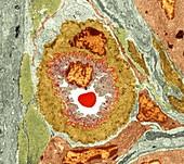 Intestinal arteriole,TEM