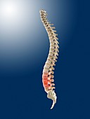 Lower back pain,conceptual artwork