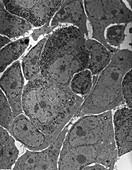Anterior pituitary gland,TEM
