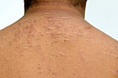 Cystic acne on the shoulders