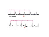 Extrasystole heartbeats,ECG artwork