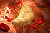 Atheromatous artery,artwork