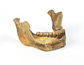 Homo heidelbergensis mandible (Mauer 1)
