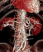 Atherosclerosis,3D CT scan