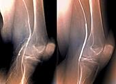 Balloon angioplasty,X-rays