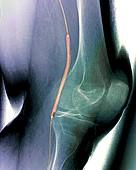 Balloon angioplasty,X-ray