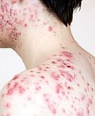 Acne vulgaris on the skin