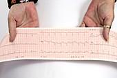 Palmar erythema and abnormal ECG