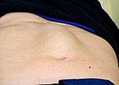 Abnormal abdominal rectus muscles