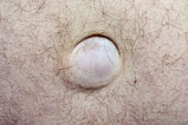 Umbilical hernia