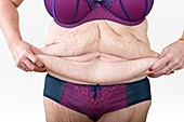 Woman with excess skin after weight loss