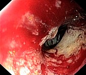 Secondary bowel cancer,endoscopic view