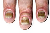 Psoriasis of the fingernails