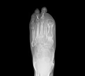 Amputated toes,X-ray