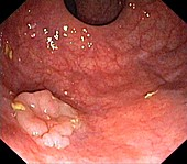Rectal adenoma,endoscope view