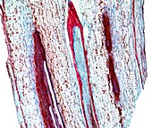Marrow stem,light micrograph