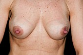 Enlarged breasts