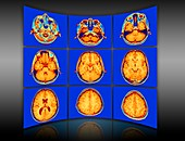Brain mri scans display wall,artwork