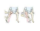 External-internal hip rotation exam