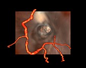 Coronary stenosis,3D CT scan