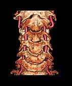 Arthritis of the neck,3D CT scan