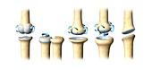 Skeletal joint types,artwork