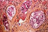 Stomach cancer,light micrograph