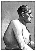 Gigantism and acromegaly,19th century