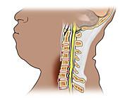 cervical bone fusion