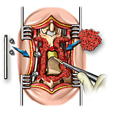 lumbar bone fusion