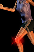 a female runner suffering knee pain