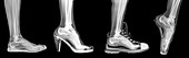 different shoes x-ray