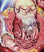 Left ventricle of heart,artwork