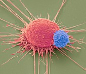 T lymphocyte and cancer cell,SEM