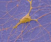 Motor neurone,SEM