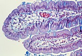 Small intestine lining,light micrograph