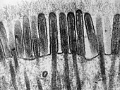 Small intestine lining,TEM