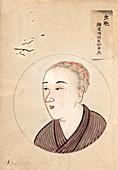 Head lice patient,19th-century Japan