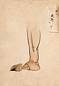 Gangrene amputation,19th-century Japan