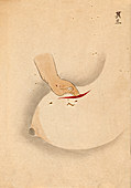 Breast cancer surgery,19th-century Japan