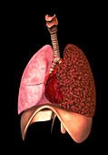 Effects of smoking,illustration