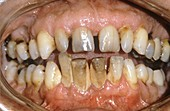Dental tartar,plaque and gum disease